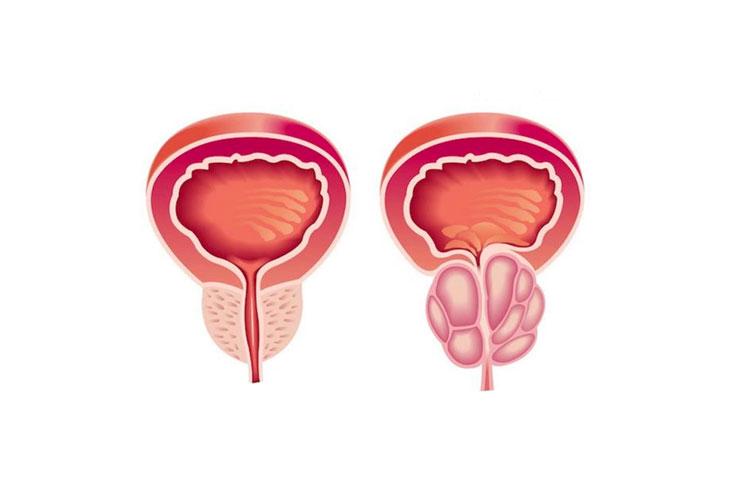 Prostate enlargement treatment Kerala