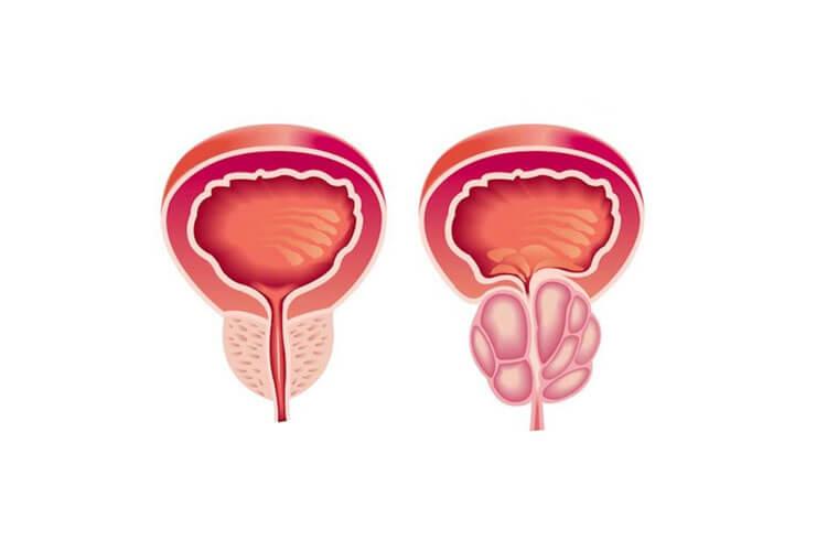 prostate-enlargement